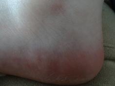 Le pied, objet de sensualité